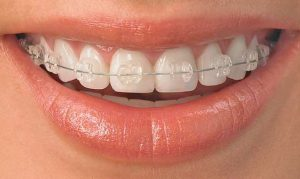 Fixed ceramic braces
