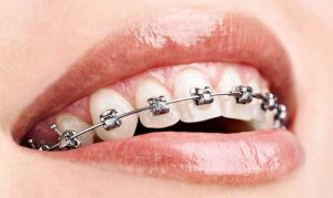 Fixed metal braces